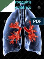 Bronquitis          pediátrico