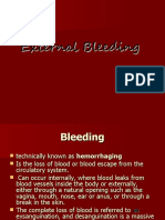 External Bleeding