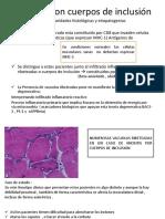 Miositis Con Cuerpos de Inclusión