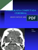 Practica 7 Tomografia Computada Cerebral Final