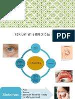 CONJUNTIVITIS INFECCIOSA