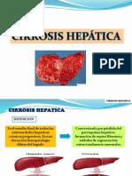 Cirrosis Hepatica Xavier Cajas Esteban