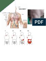 cirugia.docx