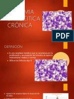 Leucemia Linfoitica Cronica