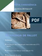 Tetralogia de Fallot e PCA Antonio Menezes