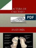 Fractura Calcáneo 13.05.16