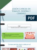 Lesión Cariosa en Esmalte, Dentina y Cemento