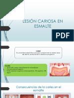 Lesión Cariosa en Esmalte 1