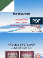 malocclusion-160605101556