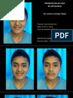 Caso Ortodoncia Yordi Arevalo