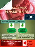 infecciones-placentarias