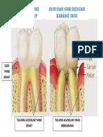 Proses Periodontitis