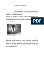 Sulcus Tipo 2