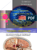 tumores-cerebrales-