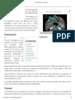 Sinusitis Etmoidal - EcuRed
