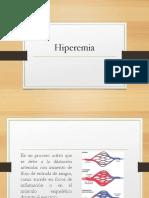 hiperemia-160829234649