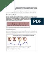 Discusion Electrocardiograma