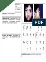 2 - Síndrome de Crouzon