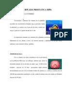 hiperplastia prostatica1