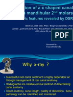 Identification of c Shape Canal System in Mandibular Second Molars