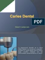 cariesdental-110727171245-phpapp02