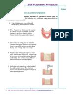 Chapter 6 Midi Implant Procedure