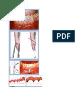 prosedur gingivek.docx