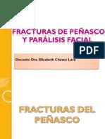 Fractura de Peñasco, Paralisis Favial