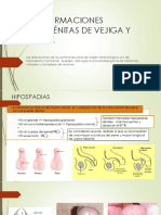 Malformaciones Congénitas de Vejiga y Uretra