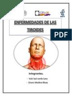 Tiroides