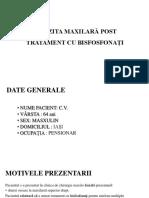 Sinuzita Maxilară Post Tratament Cu Bisfosfonați