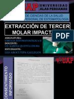 Exposicion de Cirugia II