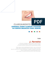 J. Ferreira - Clareamento Dental