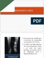 Gammagrafia Osea