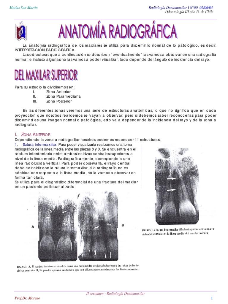 ANATOMÍA RADIOGRÁFICA.pdf