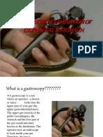 gastroscopy-161204135015