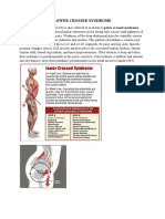 LOWER_CROSSED_SYNDROME.pdf
