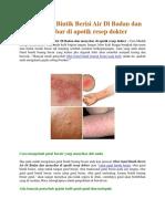 Obat Gatal Bintik Berisi Air Di Badan Dan Menyebar Di Apotik Resep Dokter