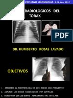 Charla Signos Rx Torax 2012 Spr Lima