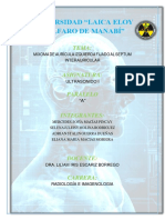 Caso Clinico Mixoma