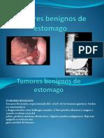 Tumores Benignos de Estomago 29p