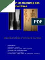 1-Fractures generalites.ppt