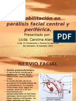 Tto Paralisis Facial