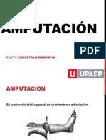 amputacion-160330014859