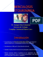tuberculosisurinaria-100713203846-phpapp02