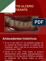gingivitisulceronecrotizantegun-130701213825-phpapp02