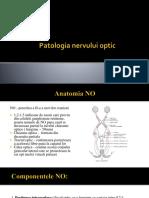 Patologia Nervului Optic - Final