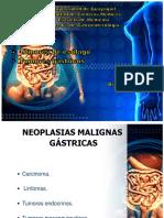 Tumores Gastricos Malignos Gabriel Olvera