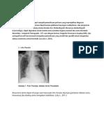 Diagnosis Aneurisma Aorta