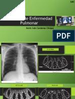 Patrones de Enfermedad Pulmonar DX IMAGENES